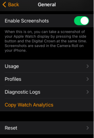 "Apple Watch: Πώς να τραβήξετε screenshot στο ""έξυπνο"" ρολόι σας;"