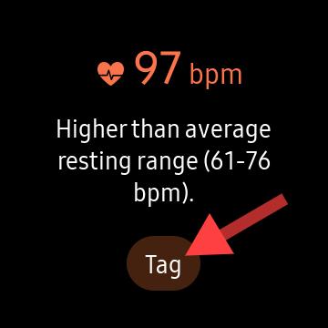 Μέτρηση καρδιακού ρυθμού