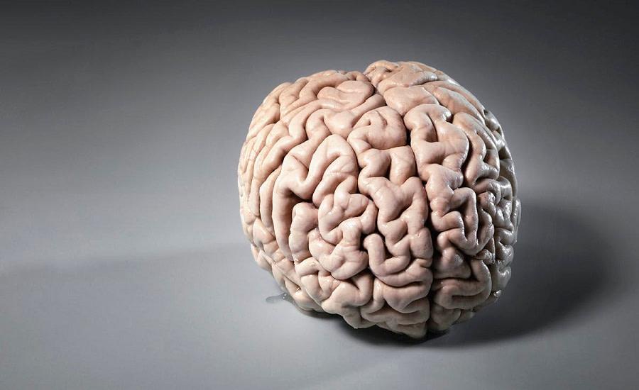 Samsung εγκέφαλο